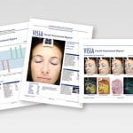 VISIA digital skin analysis