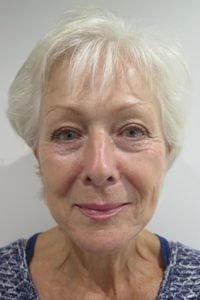 S-Thetics-Beaconsfield-Signature-Treatment-patient-testimonial-Full Face before