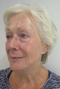 S-Thetics-Beaconsfield-Signature-Treatment-patient-testimonial-Left Oblique after