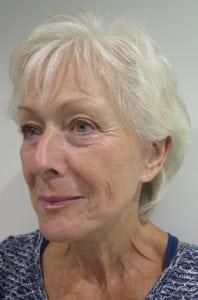 S-Thetics-Beaconsfield-Signature-Treatment-patient-testimonial-Left Oblique before