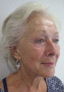 S-Thetics-Beaconsfield-Signature-Treatment-patient-testimonial-Right Oblique after