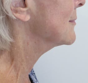 S-Thetics-Beaconsfield-Signature-Treatment-patient-testimonial-Right lateral neck after