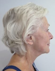 S-Thetics-Beaconsfield-Signature-Treatment-patient-testimonial-Right lateral neck after1