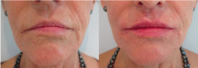 Before and after photos after dermal filler lip treatment with subtle increase in lip volume. After photo is taken immediately after treatment.