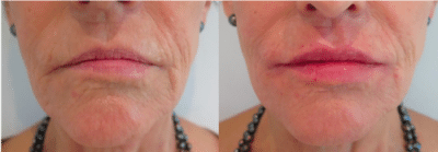 Before and after photos after dermal filler lip treatment with subtle increase in lip volume. After photo is taken immediately post treatment.