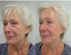 Before and after photos of left side face after S-Thetics Signature treatment, combined skin tightening and Fire & Ice facial for instant reduction of wrinkles, fine lines with glowing, hydrated skin
