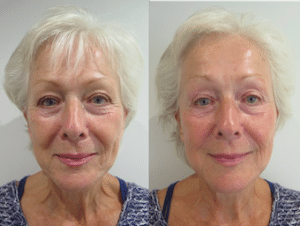 Before and after photos of full face after S-Thetics Signature treatment, combined skin tightening and Fire & Ice facial for instant reduction of wrinkles, fine lines with glowing, hydrated skin