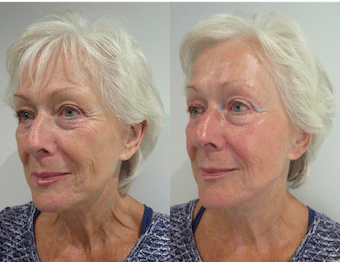 Patient testimonial with before and after photos