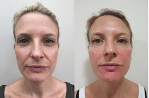 Before and after photos after dermal filler treatment with improvement in skin volume, structure and texture
