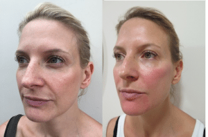 Before and after photos after dermal filler treatment with reduction of lines and subtle increase in facial volume