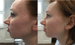 Before and after photos following a combination of iS Clinical skincare, Fire & Ice facial treatments and microneedling. After photo is taken 3 months after the initial treatment.