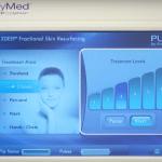 Fractional Skin Resurfacing (FSR) for acne