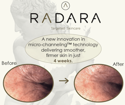 S-Thetics Beaconsfield Radara wrinkle reduction micro-channelling case study