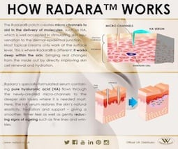 S-Thetics Beaconsfield Radara wrinkle reduction micro-channelling