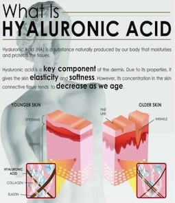 S-Thetics Beaconsfield Radara wrinkle reduction what is hyaluronic acid?