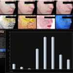 VISIA digital skin analysis