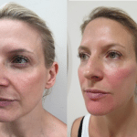 Read a dermal filler patient testimonial