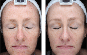 Overall reduction in skin pigmentation