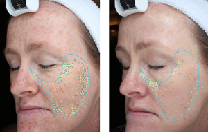 Skin texture improvement , including significant reduction in crows feet