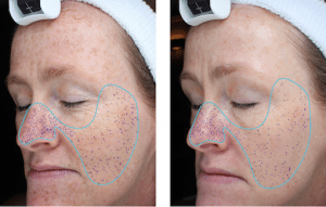 Significant reduction in pore size