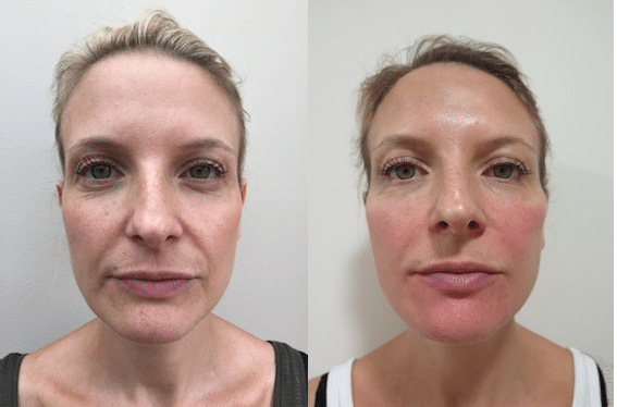 S-Thetics Beaconsfield dermal filler testimonial full face both