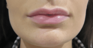 lip-fillers-buckinghamshire