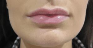lip-fillers-buckinghamshire