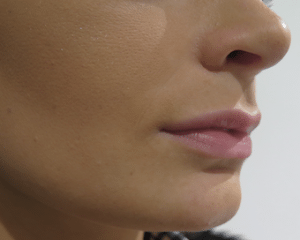 lip-filler-buckinghamshire