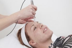 medical microneedling at S-Thetics Clinic, Beaconsfield