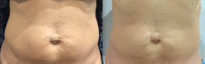 After photo shows tighter, firmer skin with reduction in circumference and cellulite