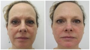 facial-fillers-treatment-with-subtle-natural-results-S-Thetics-Beaconsfield