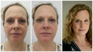 dermal-filler-buckinghamshire