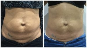 skin-tightening-buckinghamshire-before-and-after