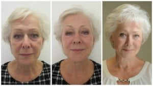 dermal-filler-before-and-after-S-Thetics-Beaconsfield