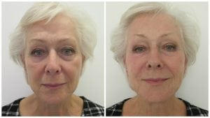 Before and immediately after dermal filler treatment with reduction of lines and improvement in skin volume, structure and texture