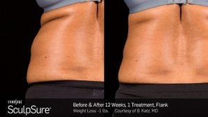 SculpSure-at-S-Thetics-Beaconsfield