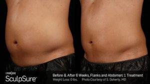 fat-reduction-with-SculpSure