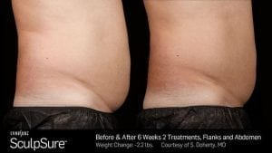 latest-fat-reduction-treatment-buckinghamshire