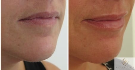 Before and after photos showing subtle increase in lip volume, hydration and definition.