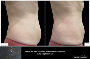 SculpSure Before and After, 15 weeks, x2 treatments to abdomen