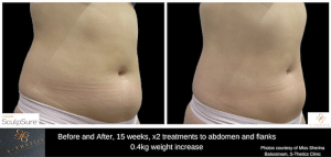 SculpSure Before and After at S-Thetics Clinic