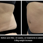 SculpSure body contouring treatment Before and After, 15 weeks, x2 treatments to abdomen at S-Thetics Clinic