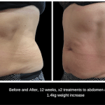 SculpSure fat reduction treatment Before and After, 15 weeks, x2 treatments to abdomen