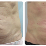 """""""My tummy feels and looks tighter, the improvements have been staggering."""""""