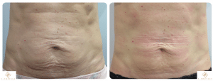 firm and tighten skin S-Thetics Skin Clinic in Beaconsfield