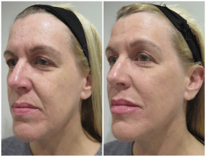 Before and immediately after dermal filler treatment with reduction of lines and improvement in facial balance and structure