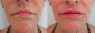 Lip enhancement – Patient Success Story