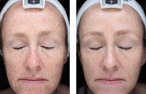Skin Treatments – Patient Success Story
