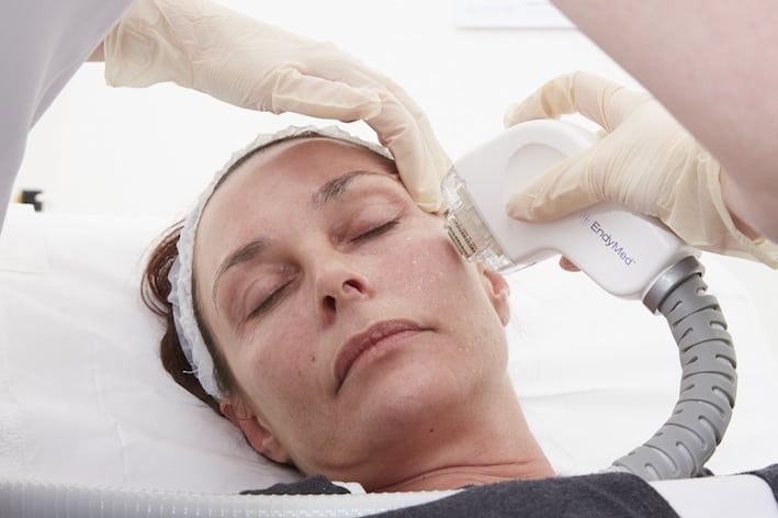skin tightening treatment Buckinghamshire