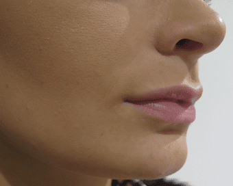 Lip Enhancement – Patient Success Story